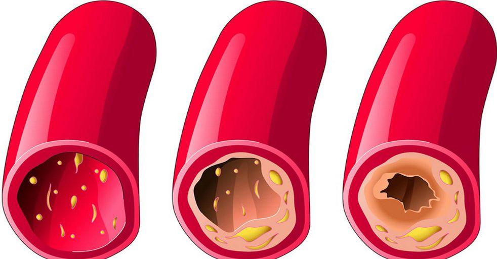 درمان چربی خون با عرق چربی خون